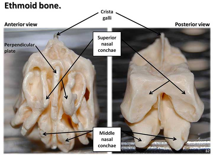 Anterior and Posterior view of the ethmoid bone