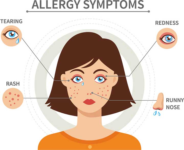 Allergy Symptoms can be relieved by Montek LC