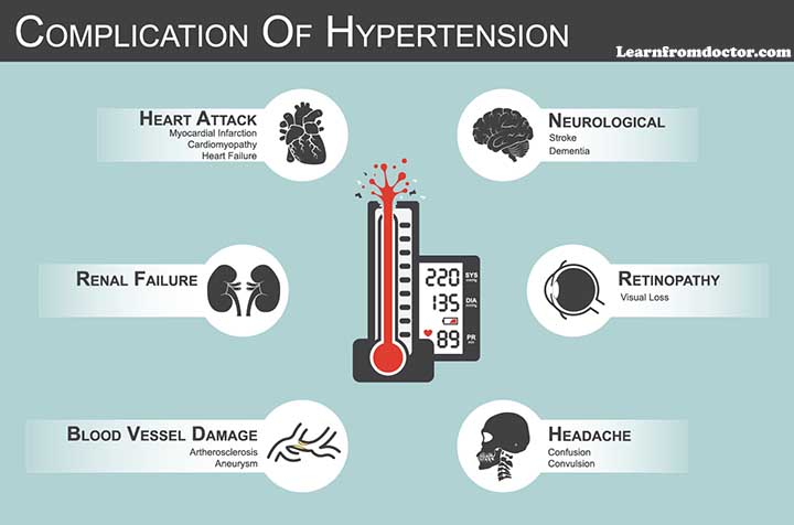 End-Stage-Complications-of-Hypertension-Sex-BP