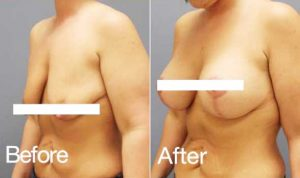 Breast Lift before and after mature women