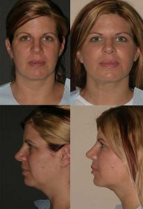 Buccal Fat Removal Before and After image