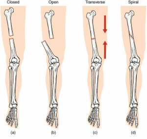 Greenstick fracture is a type of fracture