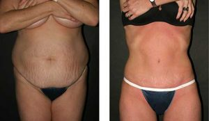 Body Sculpting before and after old female
