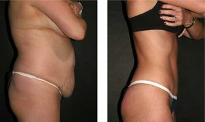 Body Sculpting before and after senior female