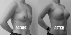 Fat Transfer Breast Augmentation before and after athlete
