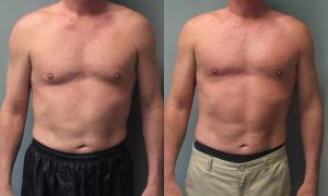 Gynecomastia surgery before and after - 55 year old male