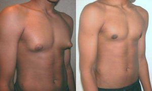Gynecomastia surgery before and after - adolescent 15 year old male
