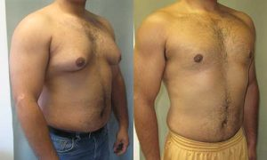 Gynecomastia surgery before and after - adult male