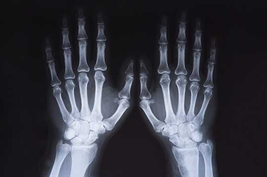 Normal hand x ray
