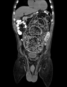 Stercoral Colitis without perforation - coronal non contrast CT