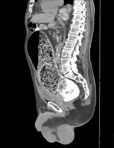 Stercoral Colitis without perforation - sagittal non contrast CT