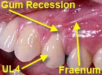 gum recession due to infection labeled