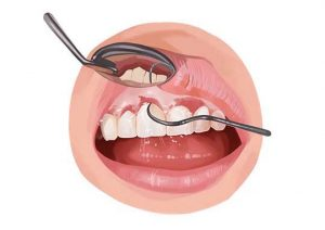 gum recession may lead to tooth decay